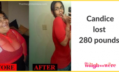 How I Lost Weight: Candice Lost 280 Pounds And I Will Never Go Back!