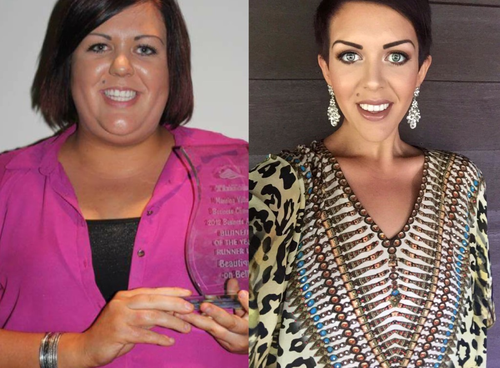 I lost 155 pounds with PCOS! Read my PCOS weight loss success story and journey from struggle to success. Support for women with PCOS who think I can't lose weight and overcome diabetes, infertility, insulin resistance. Before and after pictures, tips and Metformin for PCOS questions answered. Learn about foods, exercise, workout plans, PCOS friendly recipes, and low carb vegan diet for Polycystic Ovarian Syndrome.