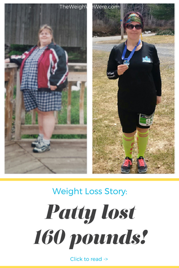 Patty Lost 160 Pounds