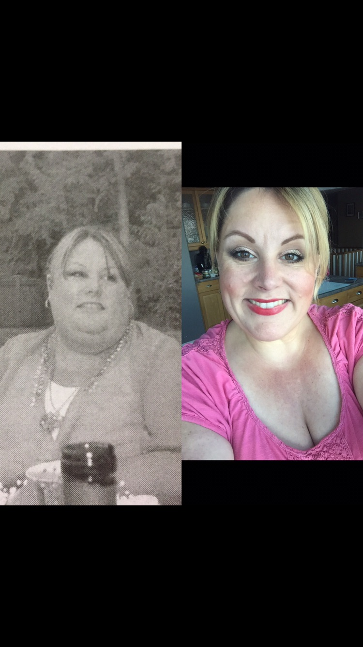 I lost 132 pounds with PCOS! Read my PCOS weight loss success story and journey from struggle to success. Support for women with PCOS who think I can't lose weight and overcome diabetes, infertility, insulin resistance. Before and after pictures, tips and Metformin for PCOS questions answered. Learn about foods, exercise, workout plans, PCOS friendly recipes, and low carb vegan diet for Polycystic Ovarian Syndrome.