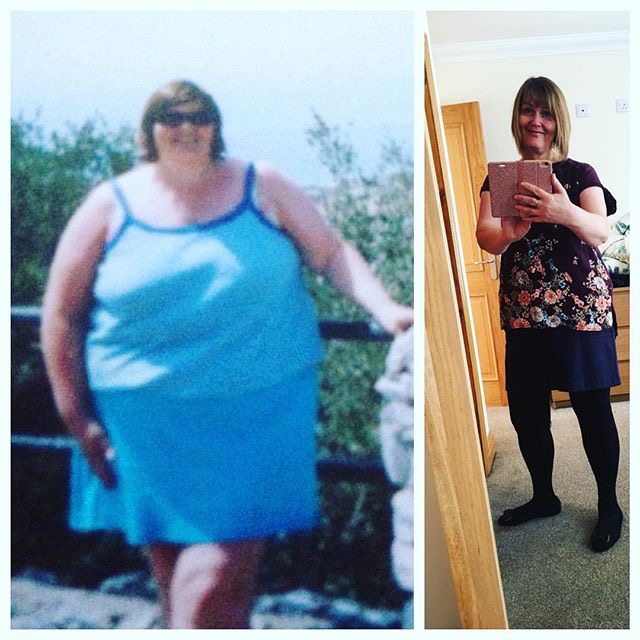 Weight Loss Before and After: Lesley Loses 96 Pounds And ...