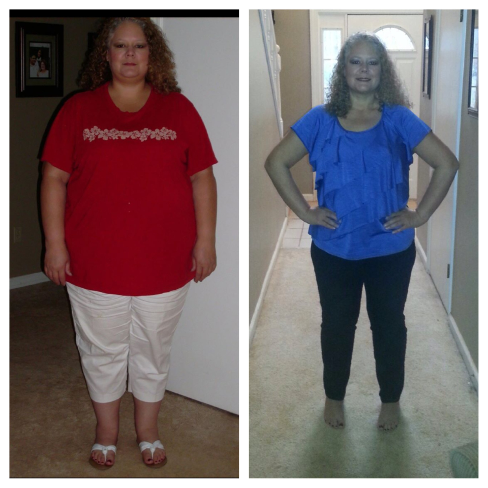 April lost 95 pounds! See my before and after weight loss pictures, and read amazing weight loss success stories from real women and their best weight loss diet plans and programs. Motivation to lose weight with walking and inspiration from before and after weightloss pics and photos.